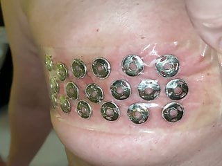 Removal of thumbtacks from the tits
